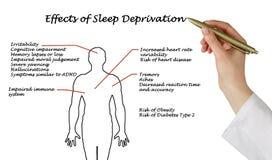 Effekter av sömnförlust Arkivbild