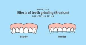 Effekter av vektorn för illustration för mala för tänder Bruxism på blått royaltyfri illustrationer