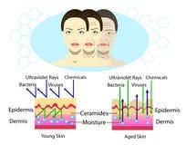 Effet d'environnement sur la peau, trois types de visage, illustration de vecteur et diagramme pour l'illustration cosmetological Image stock
