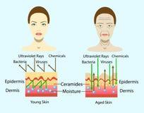 Effet de l'environnement sur la peau, diagramme de vecteur pour l'illustration cosmetological d'isolement Images stock