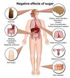 Effetti collaterali di zucchero sull'illustrazione medica del corpo umano 3d illustrazione vettoriale