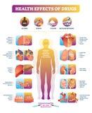 Effetti sulla salute del diagramma dell'illustrazione di vettore delle droghe illegali Insieme di malattia illustrazione di stock