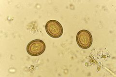 Egg of Taenia in stool. Analyze by microscope Royalty Free Stock Photos