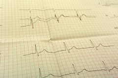 EGGor ECG papier ECG Jest rezultatem stres menchii i testa kierowy kształt z pigułek Promocyjny pakunek sprawdzać twój serce zdjęcia stock