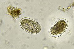 Eggs of Hookworm in stool. Analyze by microscope stock photos