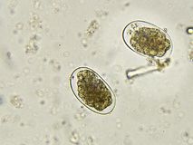 Eggs of Hookworm in stool. Analyze by microscope stock photo