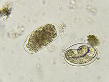 Eggs of Hookworm in stool. Analyze by microscope royalty free stock image
