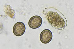 Hookworm and Taenia in stool. Eggs of Hookworm and Taenia in stool, analyze by microscope royalty free stock photo