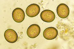 Eggs of Taenia in stool. Analyze by microscope royalty free stock photo