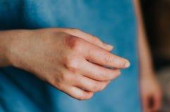 Egzema w kobiet r?kach Czerwony alergia problem obrazy royalty free