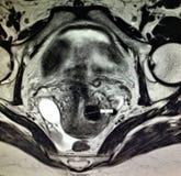 Eileiterneoplasma hematosalpinx Pathologie lizenzfreie stockfotos