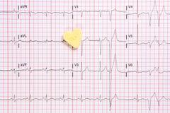 Ein anormales Elektrokardiogramm bewegt mit einem wenig Herzen wellenartig Stockfotos