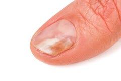 Ein Finger der Hand mit einem Pilz auf den Nägeln lokalisierte weißen Hintergrund stockfoto