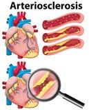 Ein Herz mit Arteriosklerose auf weißem Hintergrund Stockbilder