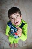 Ein Junge mit einem Milchzahn Lizenzfreie Stockbilder