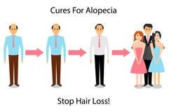 Ein Mann wird für Alopezie behandelt Lizenzfreie Abbildung