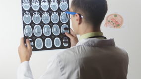 Ein Neurochirurgdoktor betrachtet einen magnetischen Resonanz- Schnappschuß der Darstellung MRI des Gehirns stock video