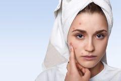 Ein Porträt der jungen Frau, die Problemhaut haben und des Zuhälters Stockbild