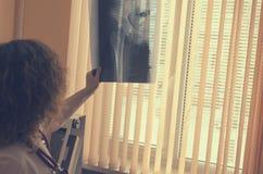 Ein Radiologe mit einem Stethoskop auf dem Hals passt einen Röntgenstrahl eines orthopädischen Patienten auf lizenzfreie stockfotos