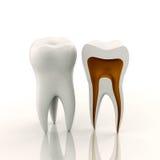 Ein voller und ein geschnittener Zahn Lizenzfreies Stockfoto