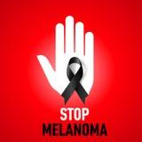 Eindemelanoma teken Stock Foto
