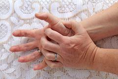 Eine Frau mit Parkinson-` s Krankheit hat ihr Handrütteln lizenzfreie stockbilder
