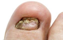 Eine große böse Zehennagelpilzinfektion groß Lizenzfreies Stockfoto