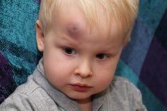 Eine große Quetschung auf der Stirn eines kleinen Jungen lizenzfreies stockfoto