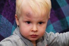 Eine große Quetschung auf der Stirn eines kleinen Jungen stockfotos