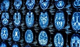 Eine Gruppe CAT-Scans des menschlichen Gehirns stockfotos