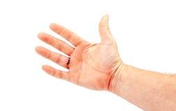 Eine Hand mit einem Finger genäht Lizenzfreie Stockfotos