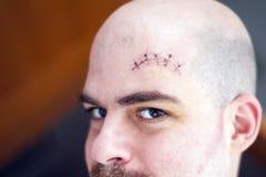 Eine klaffende Wunde über der Augenbraue Lizenzfreies Stockfoto