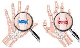 Eine menschliche Hand mit rheumatoider Arthritis lizenzfreie abbildung
