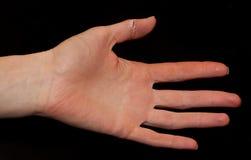 Eine tiefe Wunde auf dem Finger Stockfoto