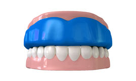Gummi-Schutz gepasst auf geschlossenen falschen Zähnen Stockbilder