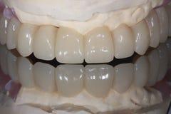 Eine zahnmedizinische Implantatbrücke des vollen Bogens mit Spiegelreflexion stockfoto