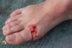 Eingeschnittene Wunde auf dem Bein einer Frau lizenzfreies stockfoto