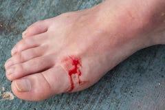 Eingeschnittene Wunde auf dem Bein einer Frau stockbild