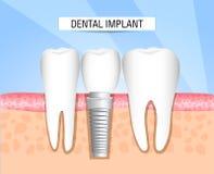 Einpflanzung von menschlichen Zähnen zahnheilkunde zahnheilkunde Realistische Zahnimplantatstruktur mit allen Teilen: Krone, Stüt lizenzfreie abbildung