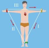 Einthoven trójboka wektoru ilustracja Ilustracji
