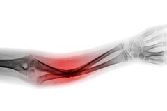 Eixo da fratura da mostra do AP do antebraço do raio X do filme do osso ulnar Foto de Stock