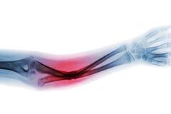 Eje de la fractura de la demostración del antebrazo AP de la radiografía de la película del hueso cubital imagen de archivo