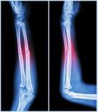 Eje de la fractura del hueso cubital (hueso del antebrazo): (vista delantera y lateral) foto de archivo