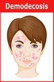 Ejemplo de Demodicosis en la cara Foto de archivo libre de regalías