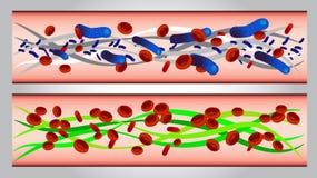 Ejemplo de glóbulos y de bacterias rojos en arteria  Imagenes de archivo