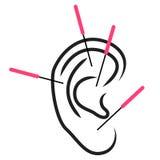 Ejemplo de la acupuntura del oído Fotos de archivo