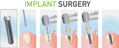 Ejemplo de la cirugía dental Imágenes de archivo libres de regalías