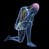 Ejemplo de la depresión - anatomía visible stock de ilustración