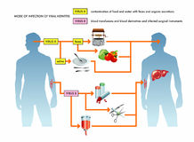 Ejemplo de la hepatitis viral Imágenes de archivo libres de regalías