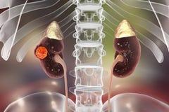 Ejemplo del cáncer del riñón stock de ilustración